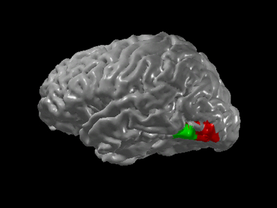 V4 and Fusiform Gyrus